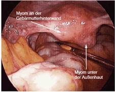 myom operation bilder